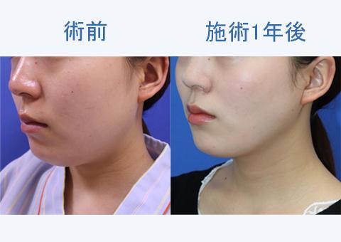 顔の脂肪吸引のダウンタイムや小顔になるまでの経過は?症例写真とともに1年後まで徹底検証!