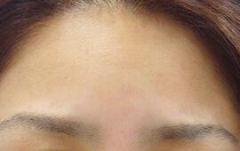30代女性のボトックス(シワ取り) After 症例写真