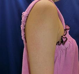 20代女性の毛孔性苔癬フラクセル After 症例写真
