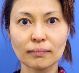 40代女性のレーザートーニング After 症例写真