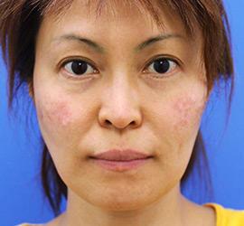 40代女性のレーザートーニング Before 症例写真