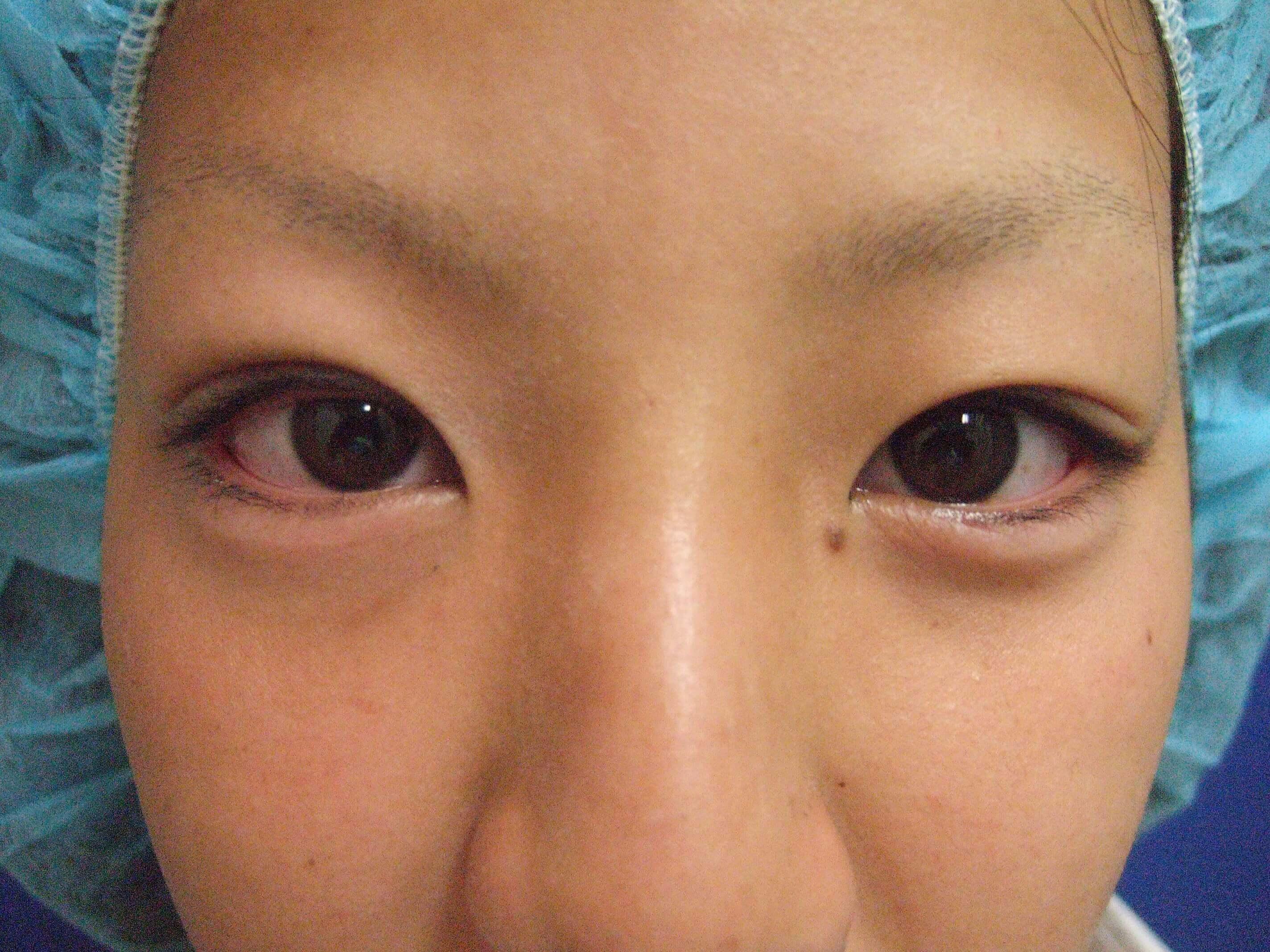 20代女性の二重埋没法 After 症例写真