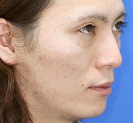 20代男性のアンコア(ブリッジセラピー) After 症例写真