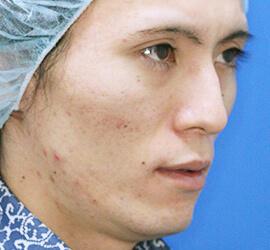 20代男性のアンコア(ブリッジセラピー) Before 症例写真