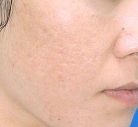30代女性のアンコア(ブリッジセラピー) After 症例写真