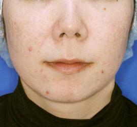 30代女性のアンコア(ブリッジセラピー) Before 症例写真