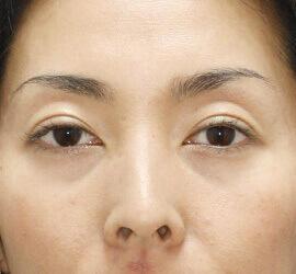 30代女性の二重埋没法 After 症例写真