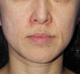 40代女性のメディカル美肌セレクト After 症例写真