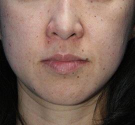 40代女性のメディカル美肌セレクト Before 症例写真