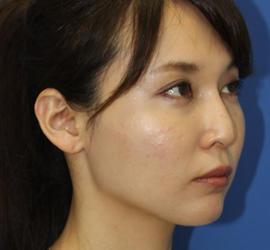 30代女性のヒアルロン酸クレヴィエル  After 症例写真