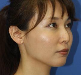 30代女性のヒアルロン酸クレヴィエル  Before 症例写真