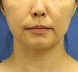 40代女性の顔の脂肪吸引  After 症例写真