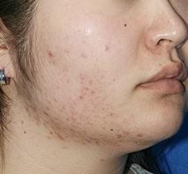 20代女性の美肌再生ピーリングコース Before 症例写真