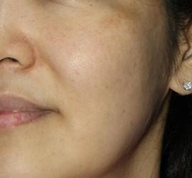 30代女性のメディカル美肌セレクト After 症例写真