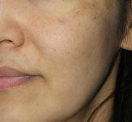 30代女性のメディカル美肌セレクト Before 症例写真