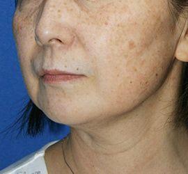60代女性のサーマクール After 症例写真