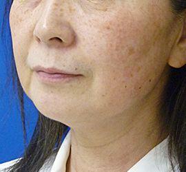 60代女性のサーマクール Before 症例写真