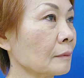 60代女性のヒアルロン酸注射  After 症例写真