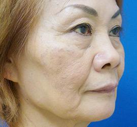 60代女性のヒアルロン酸注射  Before 症例写真