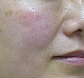 40代女性のヒアルロン酸注射  After 症例写真