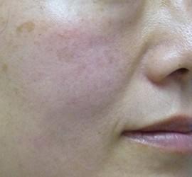 40代女性のヒアルロン酸注射  Before 症例写真