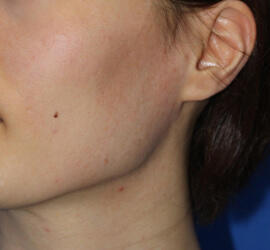 30代女性のフラクセル After 症例写真