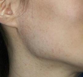 30代女性のフラクセル Before 症例写真