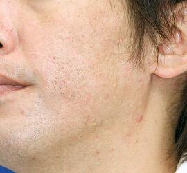 40代男性のアンコア(ブリッジセラピー) After 症例写真