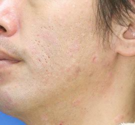 40代男性のアンコア(ブリッジセラピー) Before 症例写真