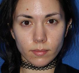 20代女性のヒアルロン酸注射(唇) Before 症例写真