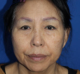 60代女性のシークレットリフト Before 症例写真