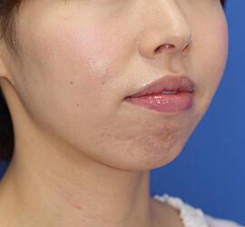 30代女性のヒアルロン酸注射(アゴ形成) Before 症例写真