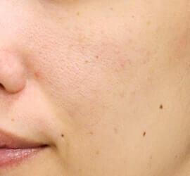 20代女性のフラクセル After 症例写真