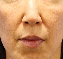 40代女性のヒアルロン酸注射(ゴルゴライン) After 症例写真