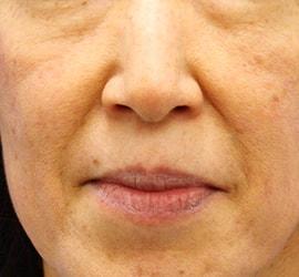 40代女性のヒアルロン酸注射(ゴルゴライン) Before 症例写真