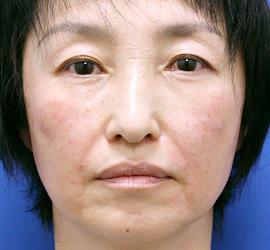 50代女性のヒアルロン酸注射  After 症例写真