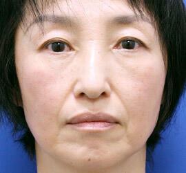50代女性のヒアルロン酸注射  Before 症例写真