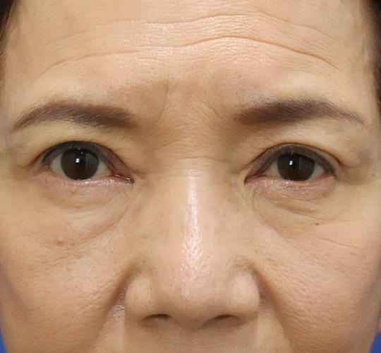 60代女性の眼瞼下垂(目つき矯正) After 症例写真