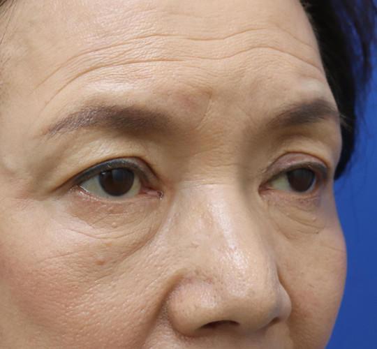 60代女性の眼瞼下垂(目つき矯正) Before 症例写真