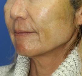 60代女性のシークレットリフト After 症例写真