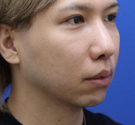 30代男性の人中短縮(リップリフト) After 症例写真