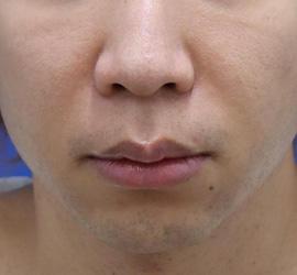 30代男性の人中短縮(リップリフト) Before 症例写真