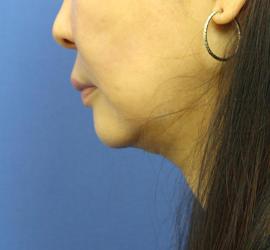 50代女性の顔の脂肪吸引  After 症例写真