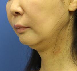 50代女性の顔の脂肪吸引  Before 症例写真