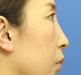 40代女性の肌再生高純度脂肪注入 After 症例写真