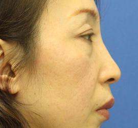 40代女性の肌再生高純度脂肪注入 Before 症例写真