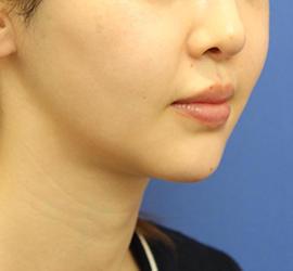 20代女性のメーラーファット除去 After 症例写真