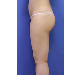 20代女性の脂肪吸引 After 症例写真