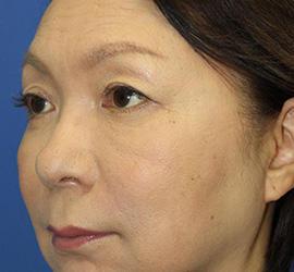 60代女性の3Dパーフェクトアイリフト  After 症例写真