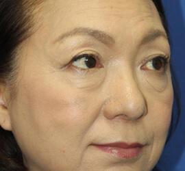 60代女性の3Dパーフェクトアイリフト  Before 症例写真